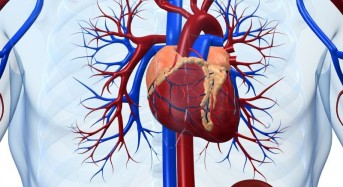 Half of heart attacks might be 'silent'