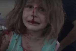 images-capture-young-girl-calling-for-father-at-hospital-after-airstrike