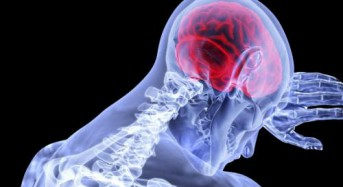 Drug reduces inflammation in early stroke symptoms