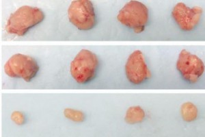 A new study demonstrated that using two currently available drugs could be an effective treatment for the majority of lung cancers. The bottom row shows tumors treated with the drug combo, compared with tumors without treatment or with single treatments above. Photo courtesy of UT Southwestern Medical Center