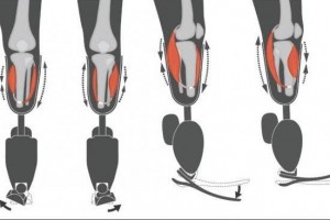 Two agonist-antagonist myoneural interface devices were surgically inserted in a patient's residual limb -- to the robotic ankle joint and robotic subtalar joint. Image by Stephanie Ku/MIT Media Lab/Biomechatronics group