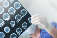 New AI system can screen for neurological illnesses in seconds