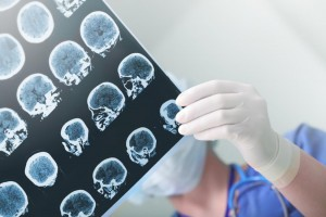 Researchers have developed an artificial intelligence method than can identify a range of acute neurological illnesses in CT scans within 1.2 seconds compared with 3 minutes by a radiologist. Photo by sfam_photo/Shutterstock