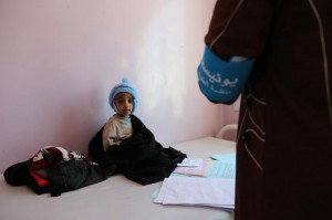 A malnourished child sits on a bed at a hospital in Sana'a, Yemen. A report by Save the Children Wednesday detailed challenging conditions in the war-torn country, like the rising cost of food. File Photo courtesy of UNICEF