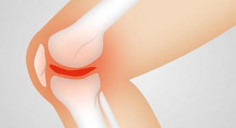 Researchers find potential treatment for knee, spine osteoarthritis
